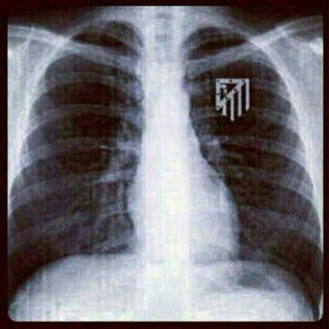 radiografia_escudo_Atleti